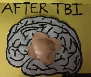 Drawing of brain with large band aid in center of brain to indicate injury to brain