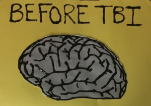 Drawing of healthy brain with raised black lines to indicate folds in brain matter