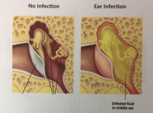 Image: left side inner ear healthy/air filled; right side inner ear filled with pus/infection