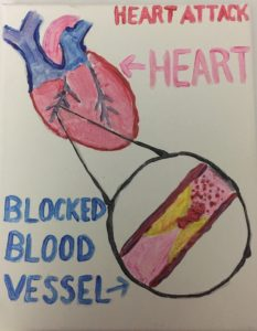 diagram of heart with expanded picture of blood vessel with yellow blockage