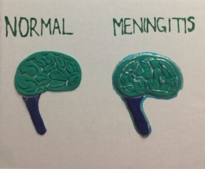 Tactile graphic of health brain on left and brain infected with meningitis on right