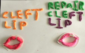 Tactile graphic: bottom left - upper lip with cleft; bottom right - cleft lip repaired