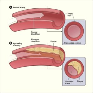 Artery - clean and artery clogged